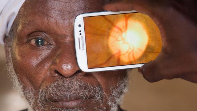这款APP要让全世界穷人享受专业眼科检查