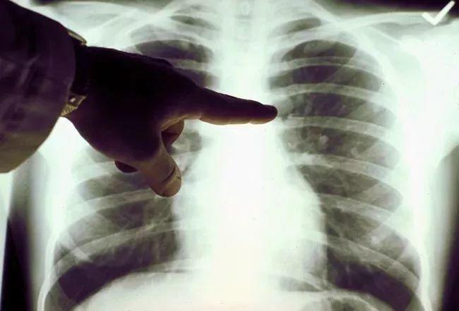 """医疗影像中观察出的""""肺结节""""是诊断肺癌的重要依据"""