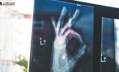 AI 医学影像辅助诊断的商业模式分析
