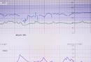 市場分析報告   富途牛牛資訊板塊行業分析
